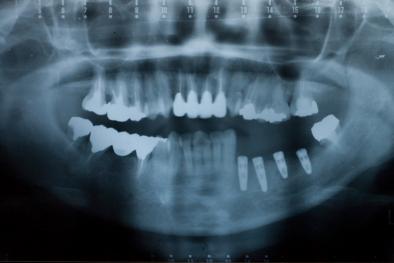 フラップレスインプラント(続編) セラミック歯セット パノラマレントゲン写真