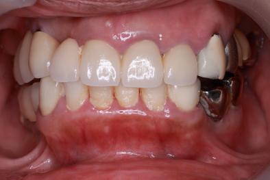抜歯即時埋入 即時負荷インプラント 術前