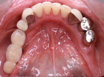 抜歯即時埋入 即時負荷インプラント 咬合面