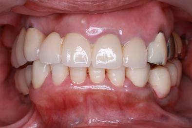 抜歯即時埋入 即時負荷インプラント 術後