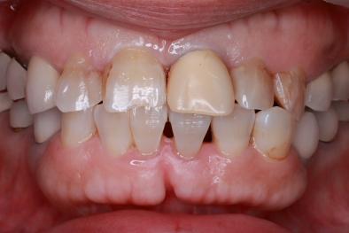 前歯 ジルコニアセラミック