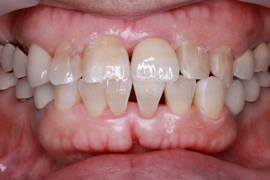 前歯 ジルコニアセラミック 術後