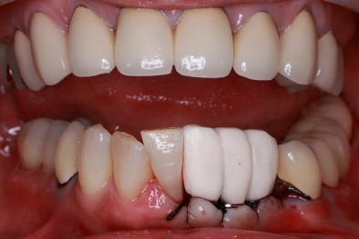 前歯インプラント 骨再生治療 仮歯