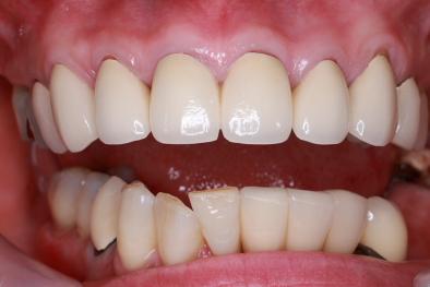 前歯インプラント 骨再生治療 セラミック歯セット