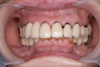 抜歯即時インプラント セラミック歯セット