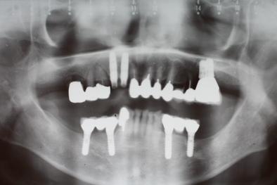 抜歯即時インプラント パノラマレントゲン