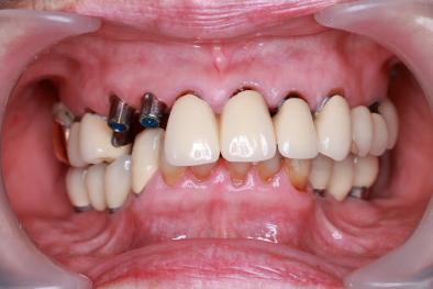 抜歯即時インプラント アバットメント