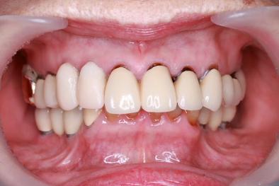 抜歯即時インプラント 仮歯
