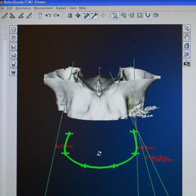 上顎骨(正面)