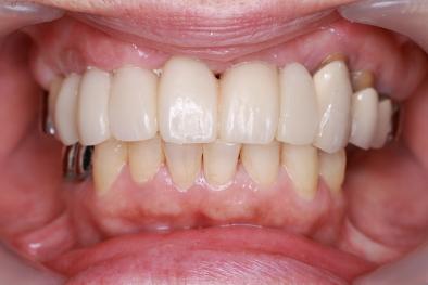 仮歯セット