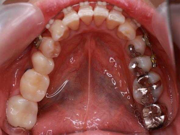 セラミック歯セット