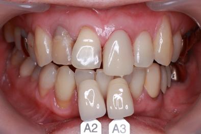 仮歯と色合わせ
