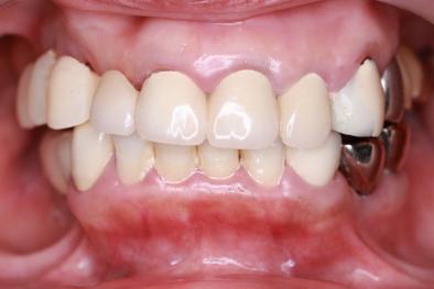 仮歯 正面