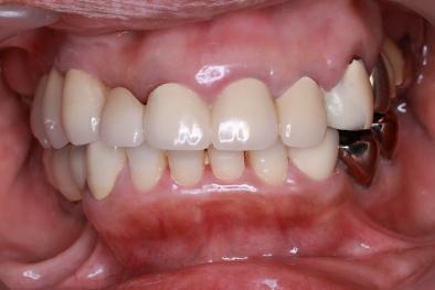 セラミック歯セット 正面